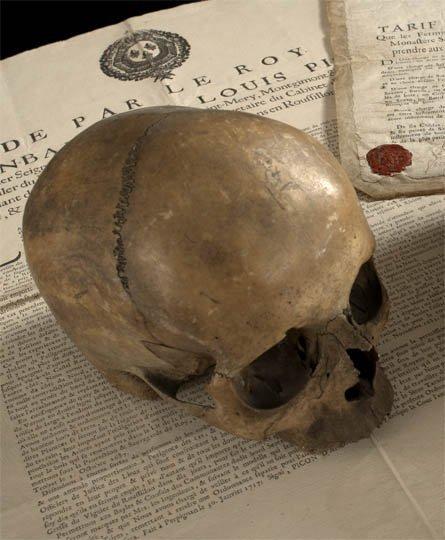 87: Human Skull
