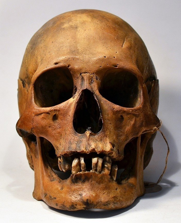 Skull from an Egyptian mummy, ex. Wistar Institute