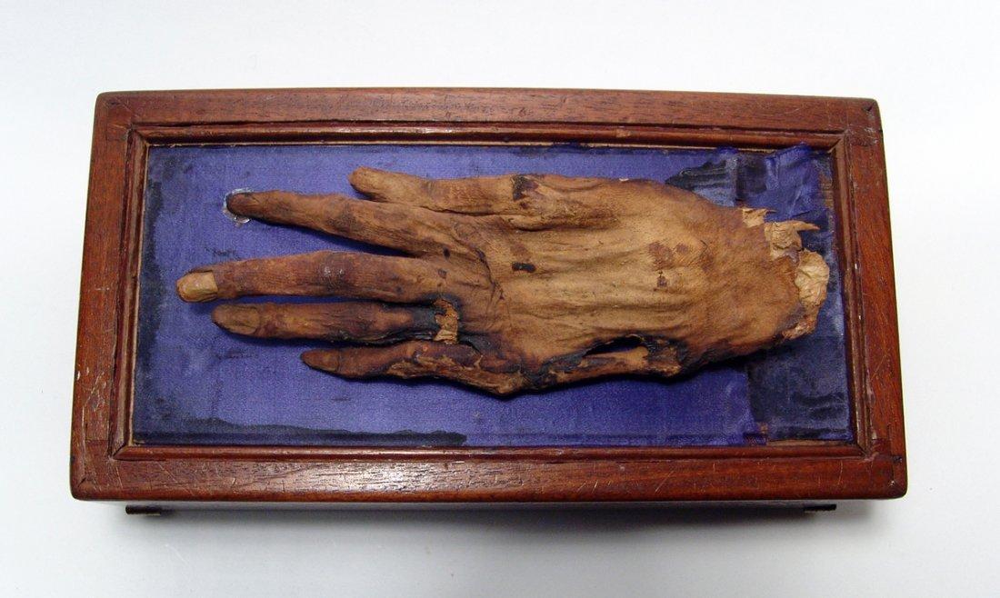 Mummified hand of 'Cleopatra' - 3