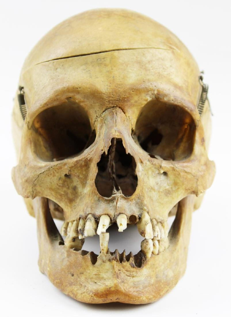 Antique human medical skull