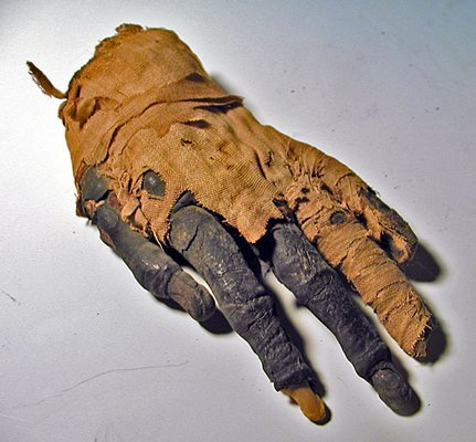 15: An Egyptian Mummified Human Hand