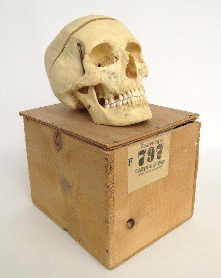394: Human Skull