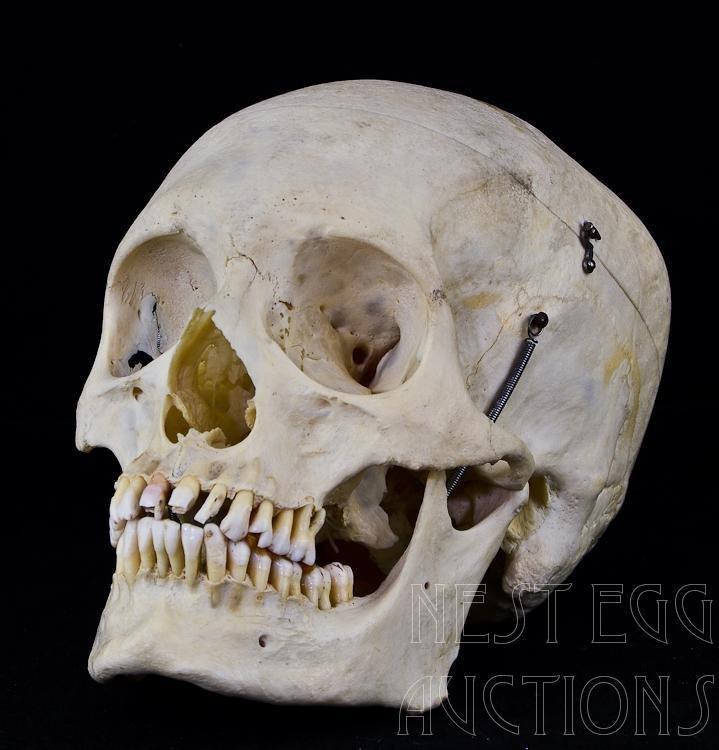 Human Male Skull Medical Preparation 27 Teeth