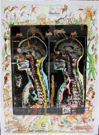 Peter Beard Signed Artist Proof MRI IRM Iris Print
