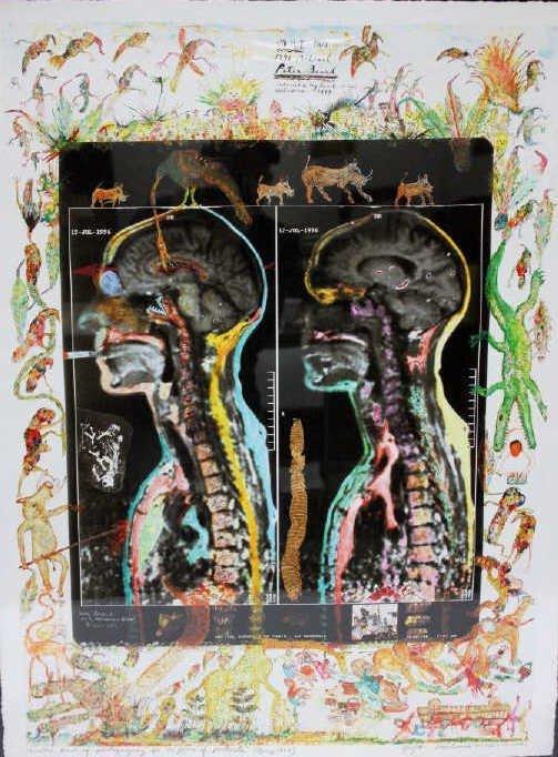 Peter Beard Signed Artist Proof MRI IRM Iris Print