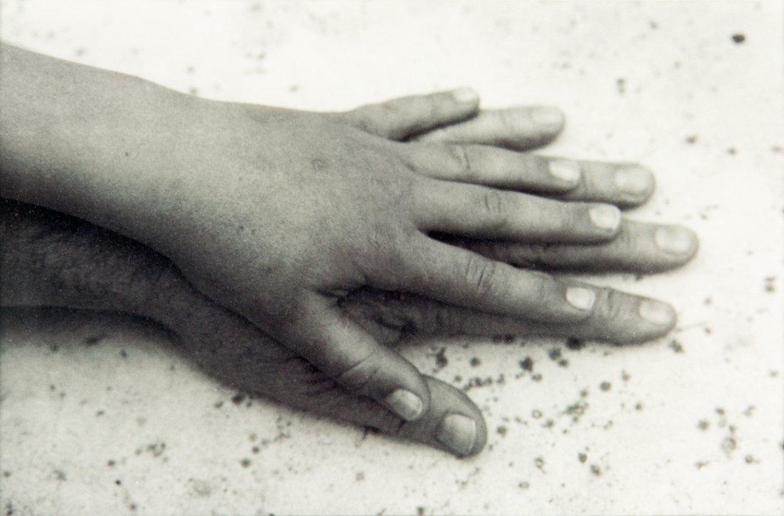 84: Peter Peryer, Thea's Hand