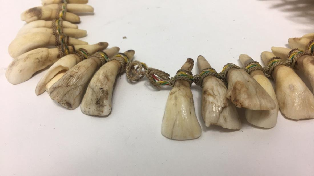 TRIBAL TOOTH NECKLACE - 5