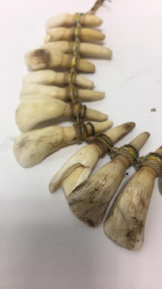TRIBAL TOOTH NECKLACE - 8