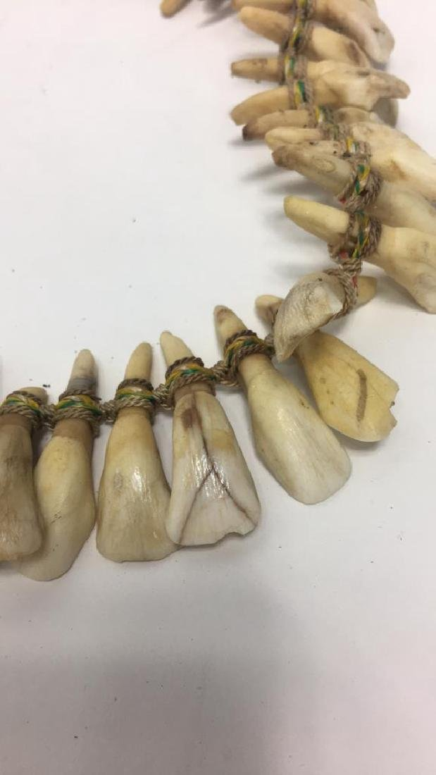 TRIBAL TOOTH NECKLACE - 9