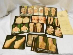 128 Stereoptic Cards,1911, Diseases Of The Skin