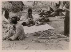 Nagasaki Original Photograph of the Wounded by Yosuke Yamahata