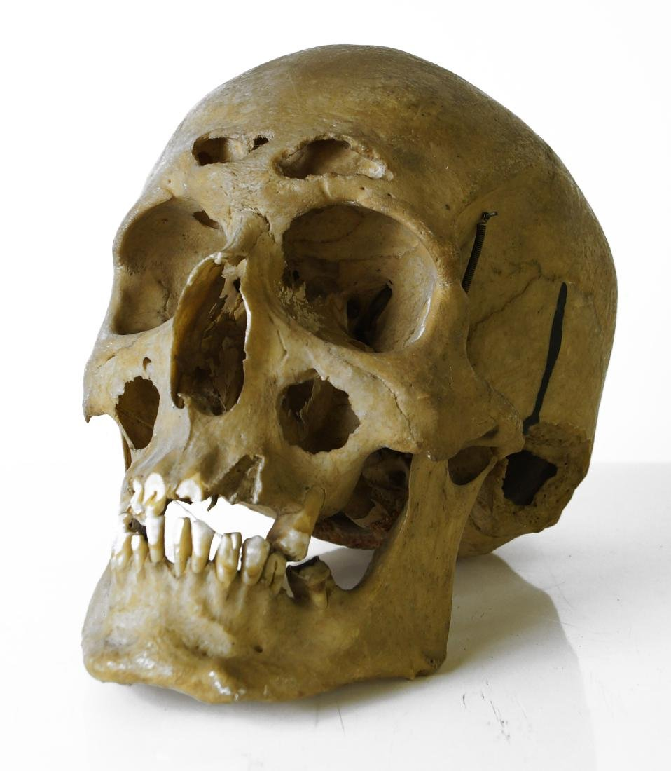 HUMAN SKULL FOR MEDICAL STUDY WITH DISEASE