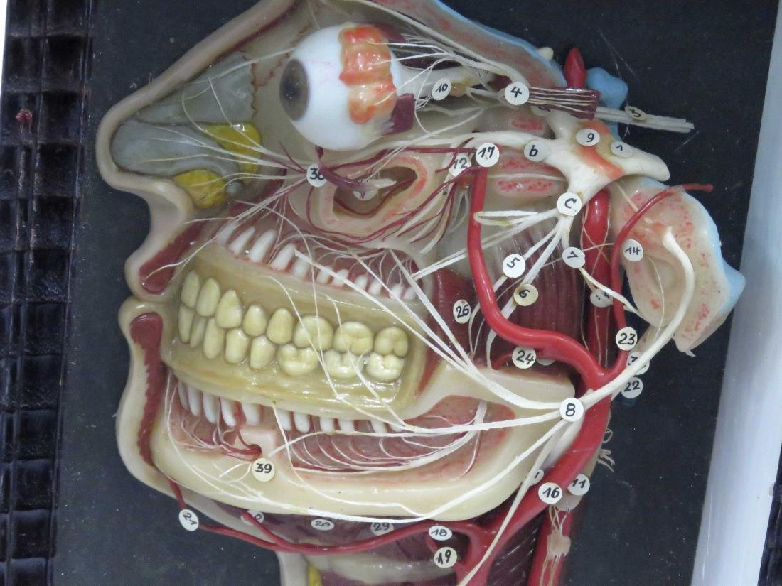 VINTAGE GERMAN WAX MAXILLOFACIAL MEDICAL MODEL - 2