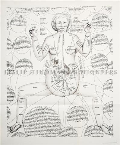(MEDICINE) KETHAM, JOHANNES DE. The Fasciculus Medicina
