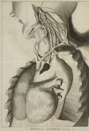 2052128: HALLER, ALBRECHT VON.  1755  Opuscula patholog