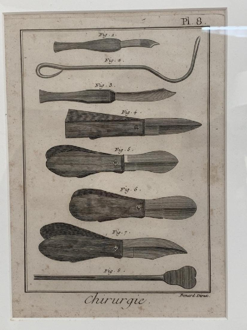 Pair Antique French Surgical / Medical Engravings - 3