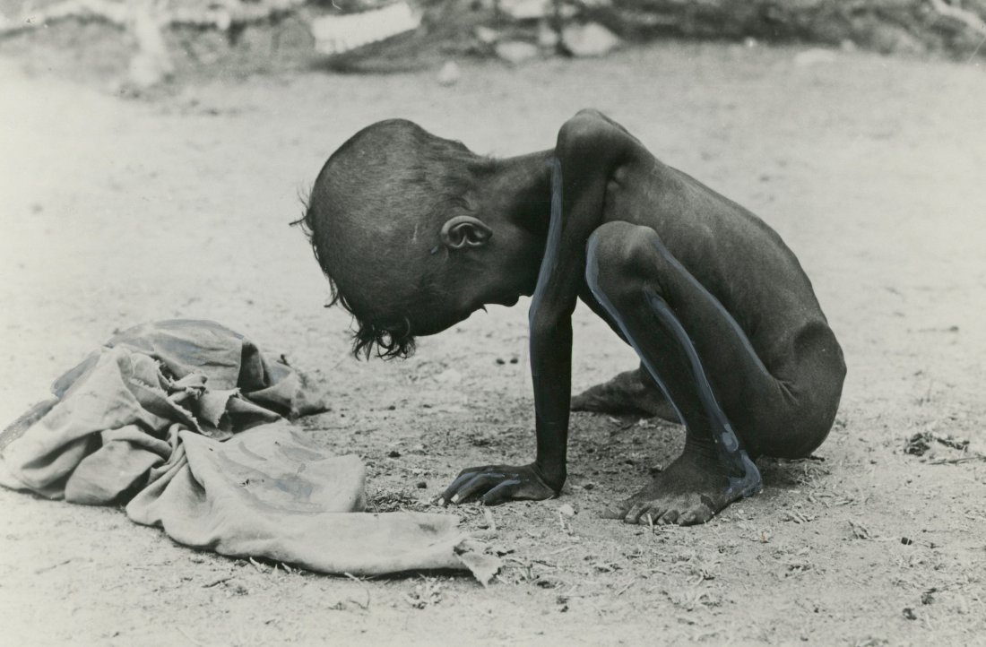 Iconic NC Press Photo The Face of Hunger in India,