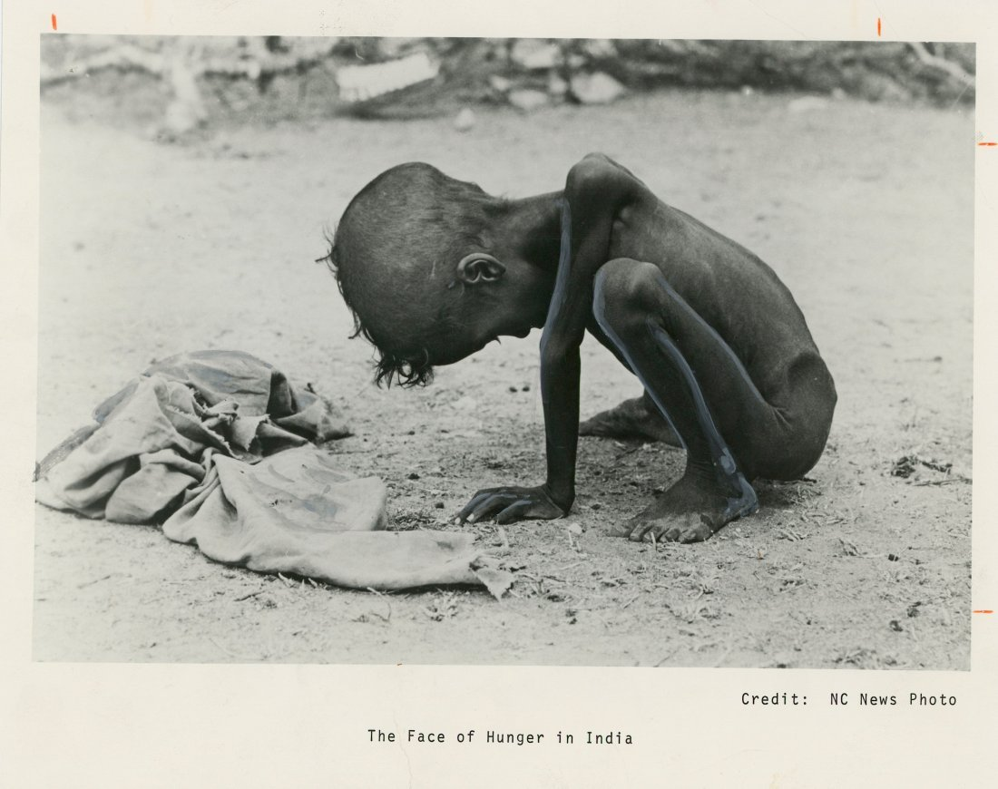 Iconic NC Press Photo The Face of Hunger in India, - 2