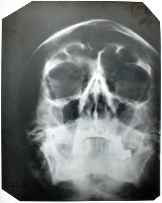 AN X-RAY OF ADOLF HITLER'S SKULL