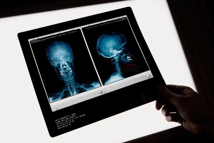 Damien Hirst  X-Ray