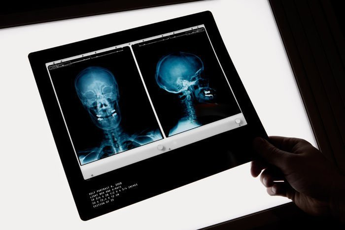 Damien Hirst  X-Ray