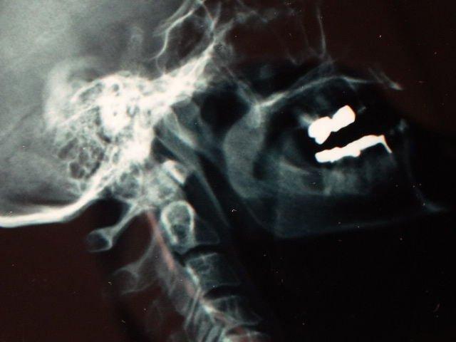 Damien Hirst  X-Ray - 5