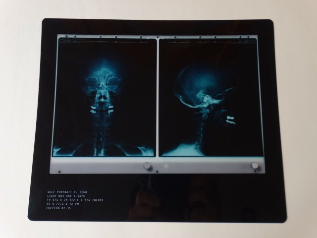 Damien Hirst  X-Ray - 6
