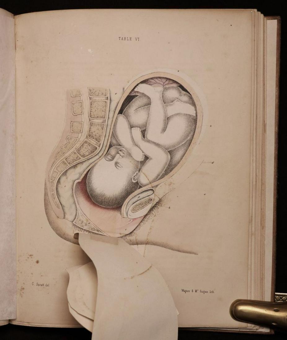 [Illustration, Midwifery]  Spratt's Obstetric Tables