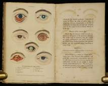 [Medicine] Diseases of the Eye