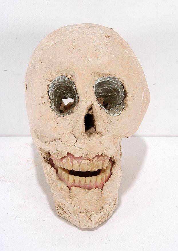 James Son Ford Thomas. Skull w Dentures.