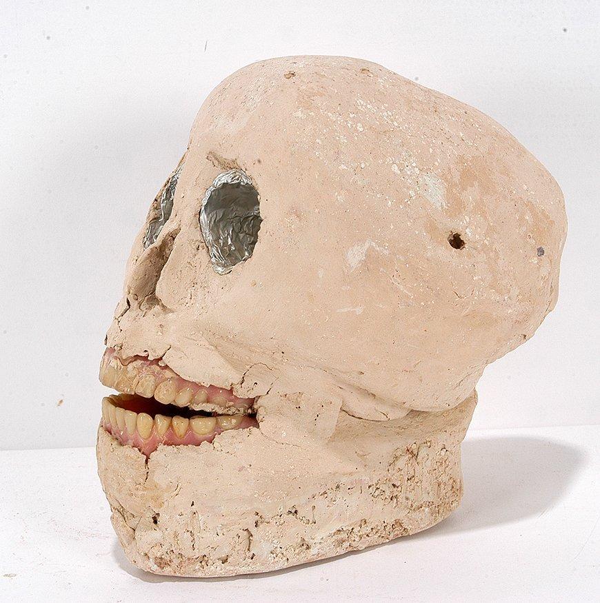 James Son Ford Thomas. Skull w Dentures. - 2