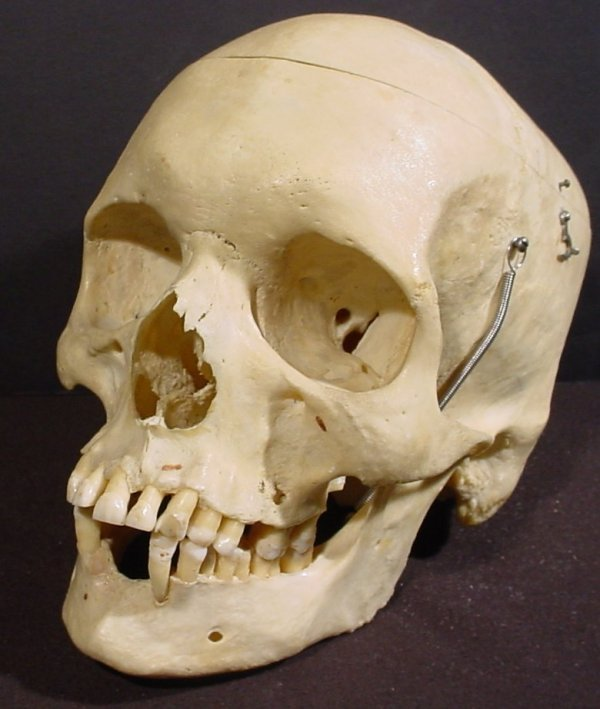 1020: Human skull, hinged jaw, removeable top, from the