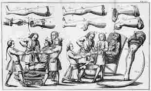 Heister, Laurentius: Chirurgie