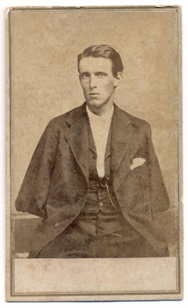 c. 1865 Civil War Soldier Double Amputee Alfred