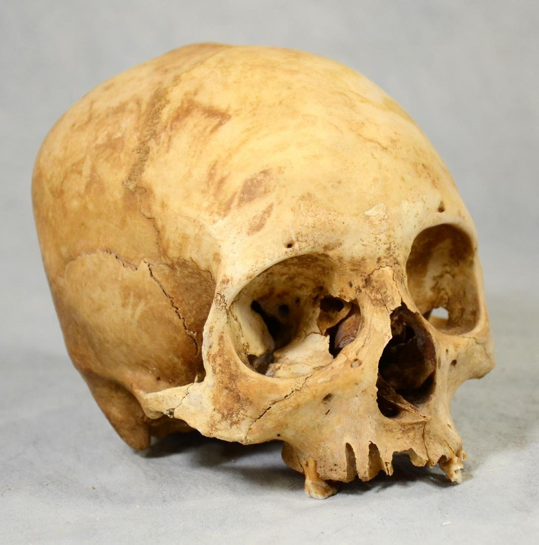 Real Human Skull  European Medical Use sans Lower Jaw