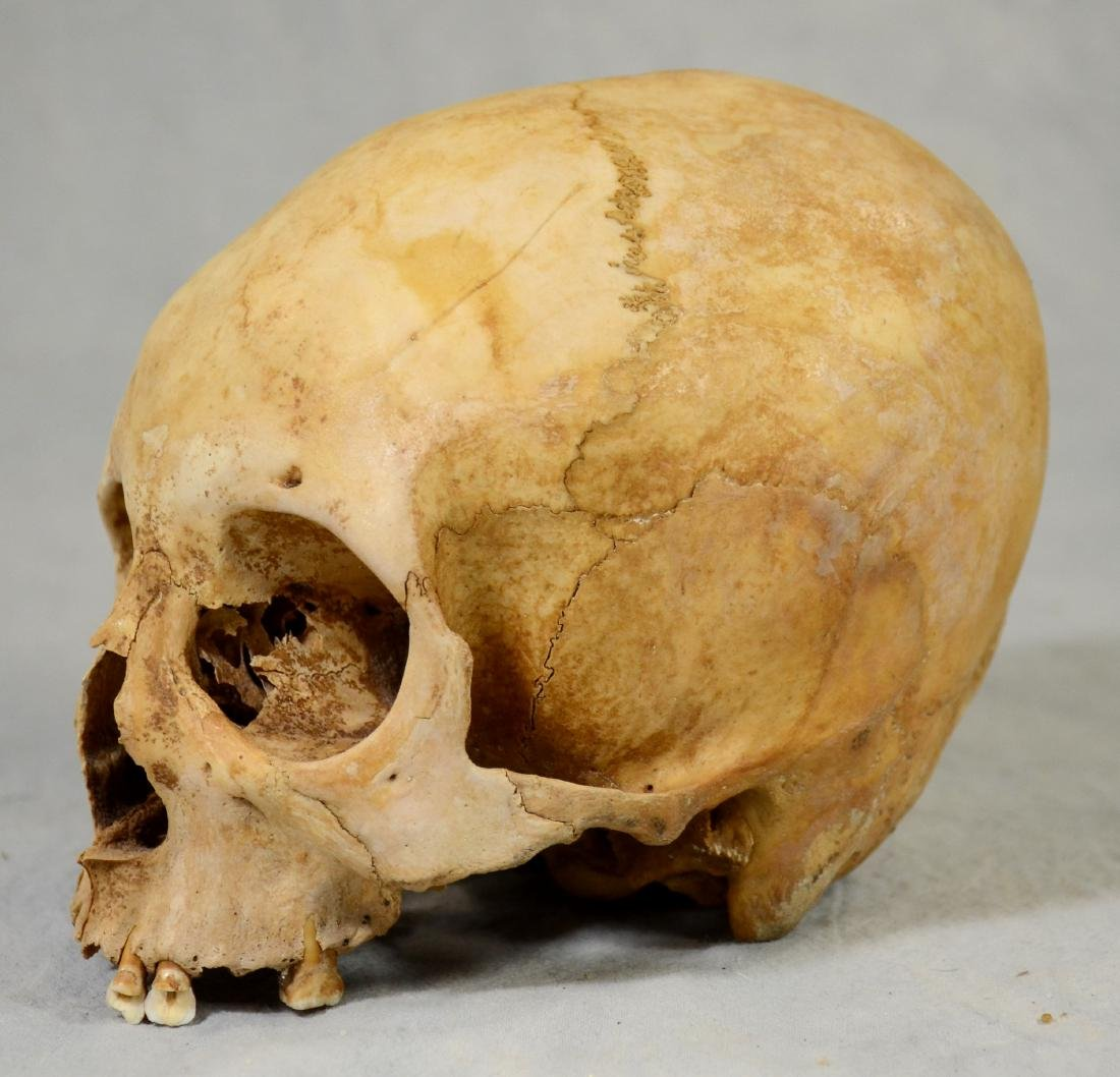 Real Human Skull  European Medical Use sans Lower Jaw - 2
