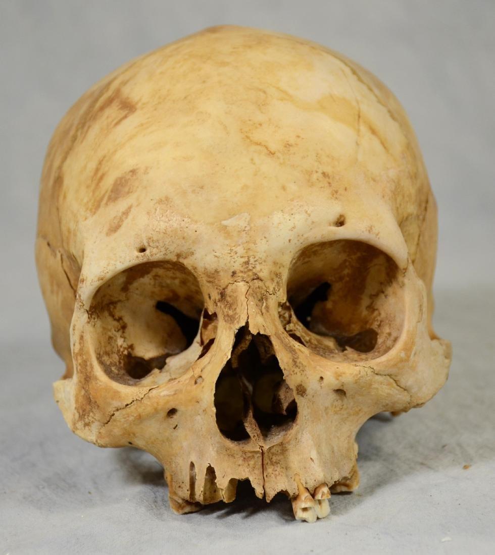 Real Human Skull  European Medical Use sans Lower Jaw - 3