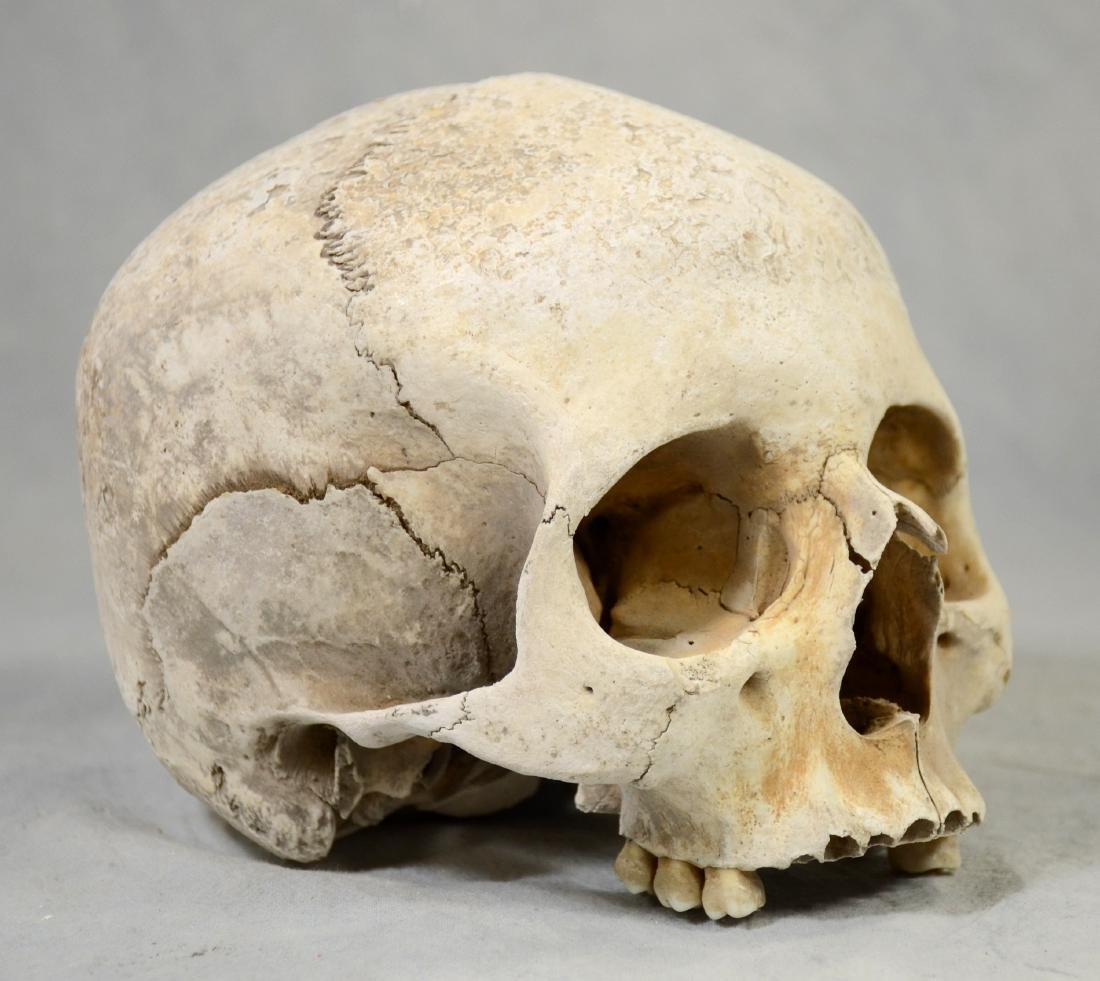 Lg Genuine Human Skull  Medical Use sans Lower Jaw,