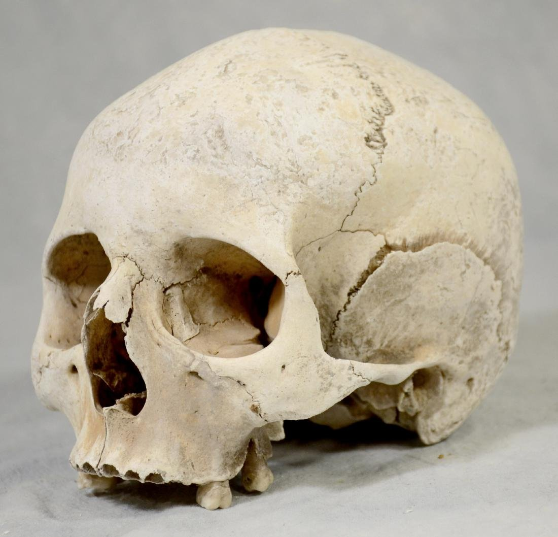 Lg Genuine Human Skull  Medical Use sans Lower Jaw, - 2