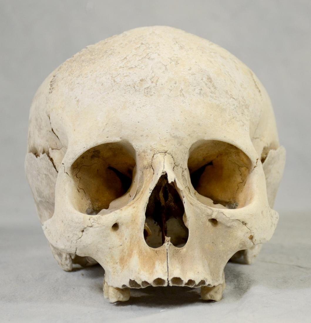 Lg Genuine Human Skull  Medical Use sans Lower Jaw, - 3