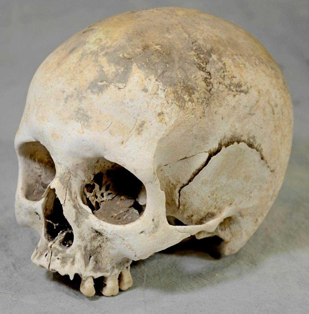 Authentic Human Skull  Medium Size Medical Use sans