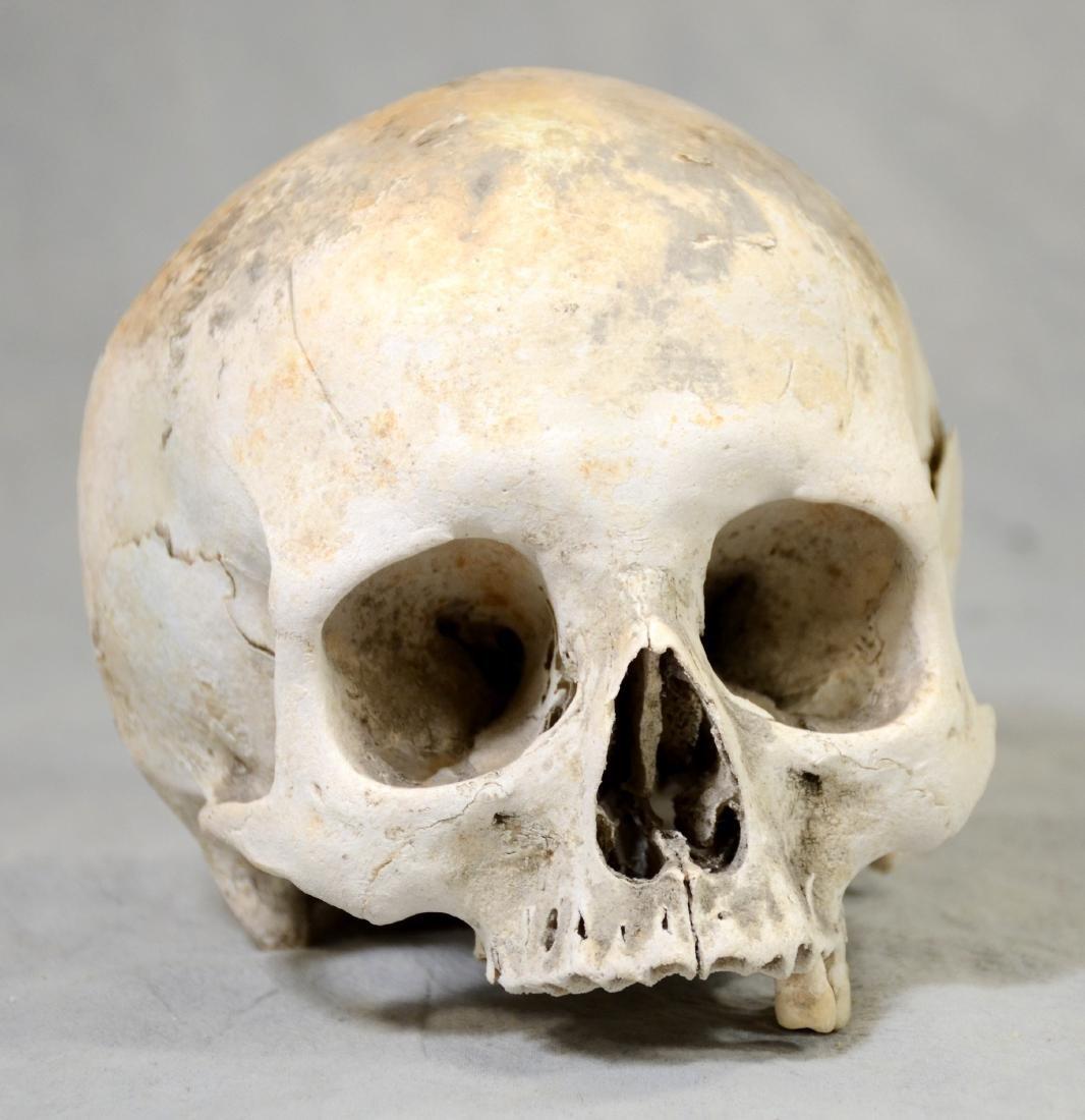 Authentic Human Skull  Medium Size Medical Use sans - 2