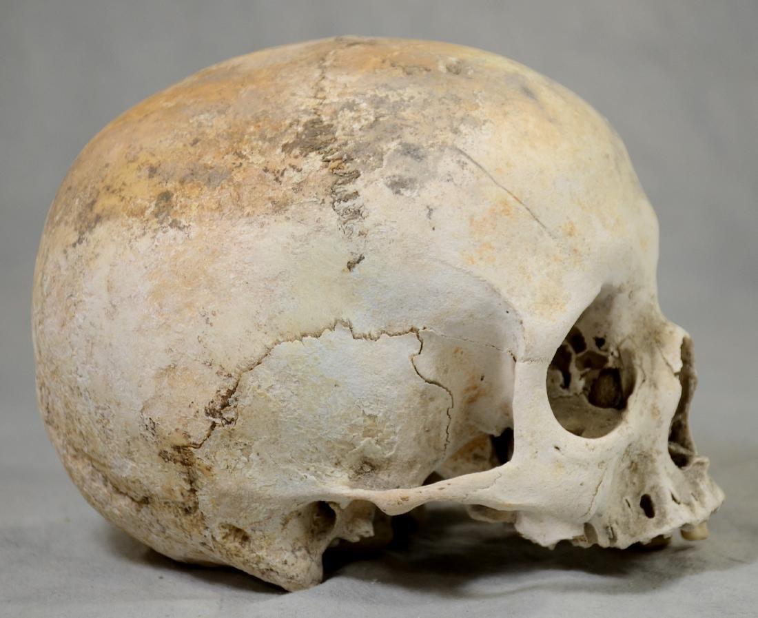 Authentic Human Skull  Medium Size Medical Use sans - 3
