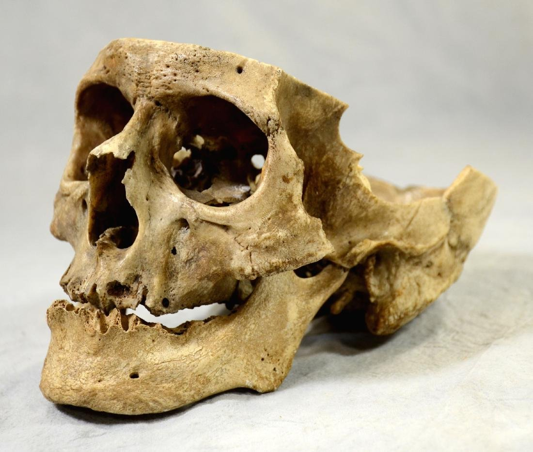 Real Human Skull for Medical Use w/ Lower Jaw sans