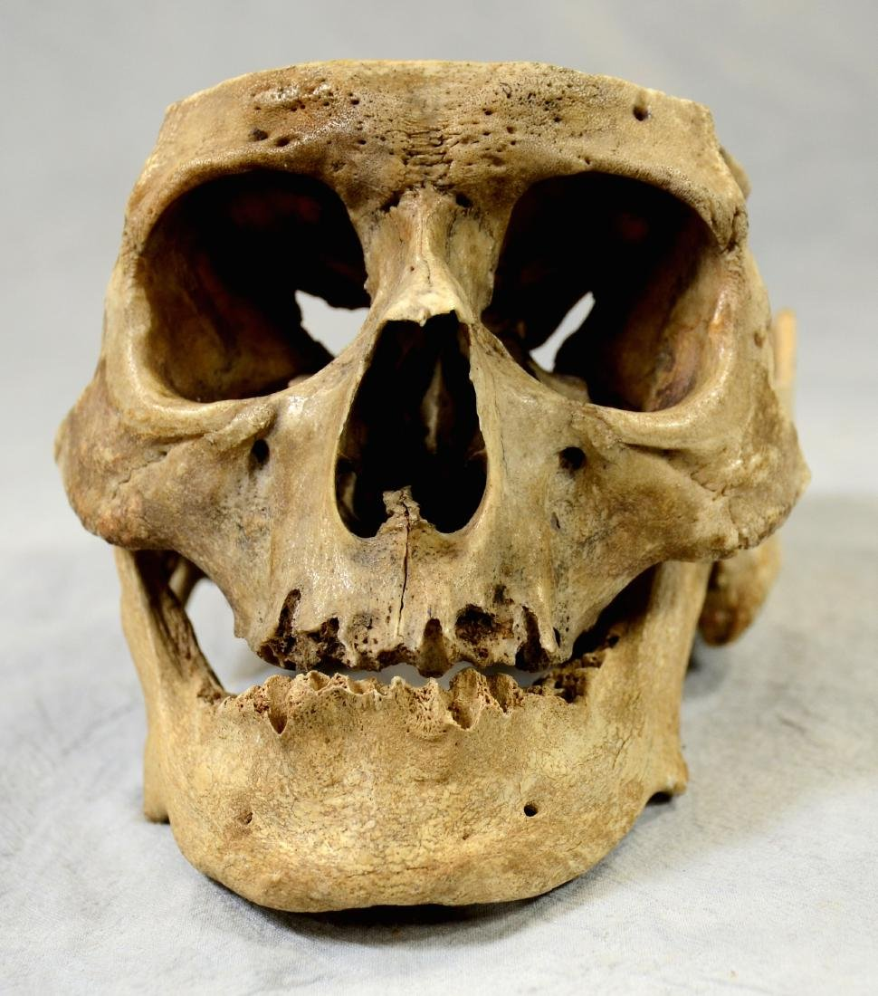 Real Human Skull for Medical Use w/ Lower Jaw sans - 2