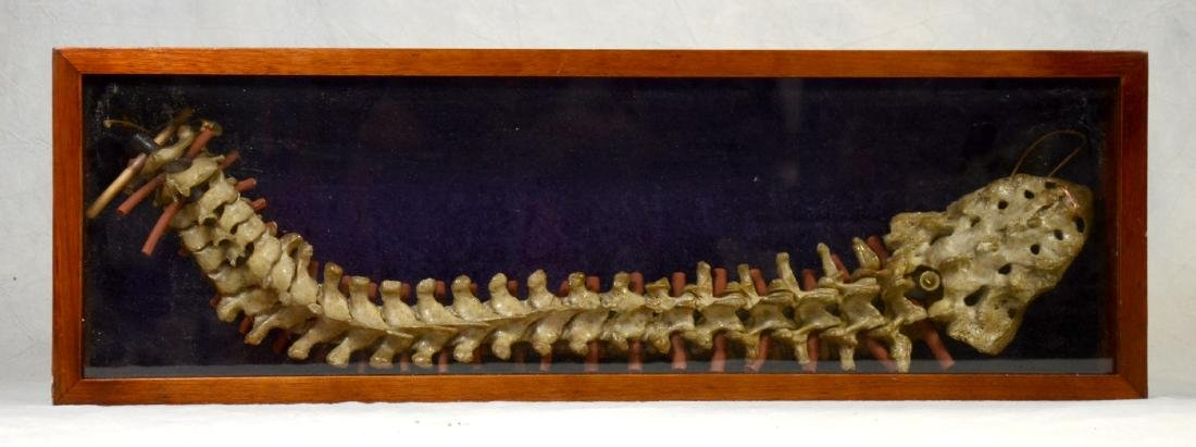 Cased Human Spine & Sacrum Fully Articulated  Medical