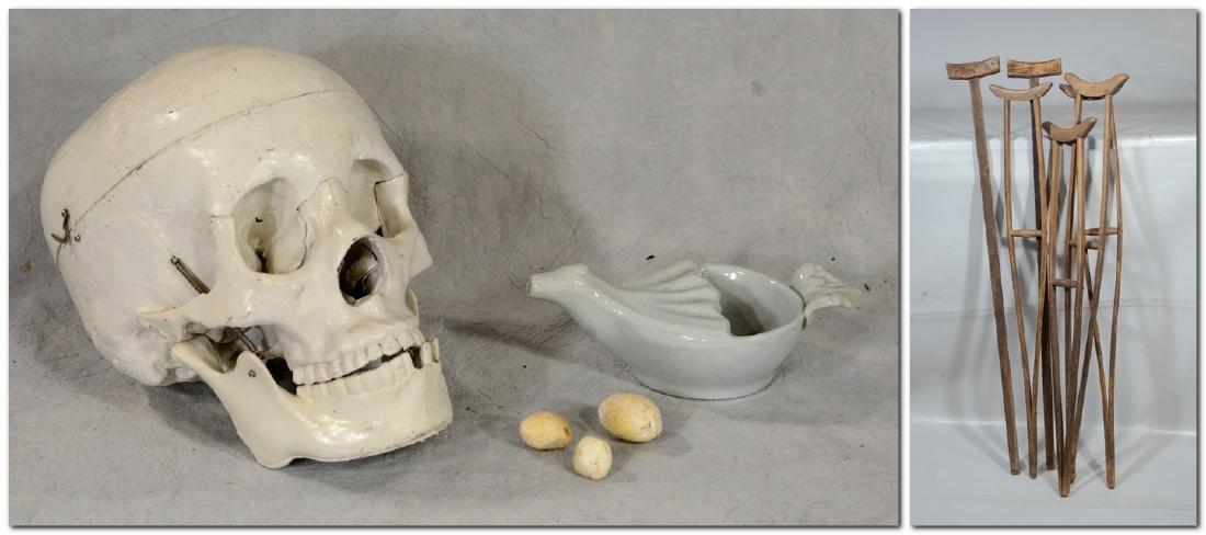 Kidney Gall Stone Lot  3pcs  Odd  HUGE!; Medical