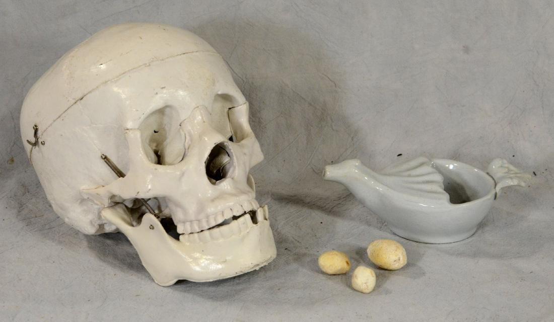 Kidney Gall Stone Lot  3pcs  Odd  HUGE!; Medical - 2