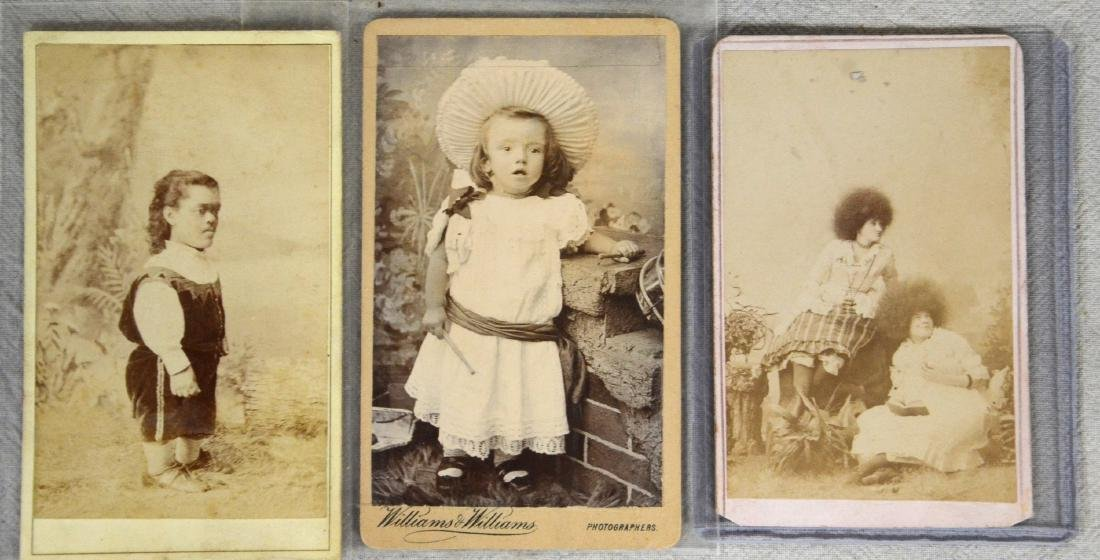 Victorian Side Show Circus Freak CDV Photograph Lot