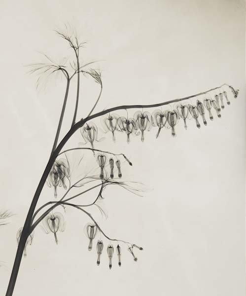 314: DR. DAIN L. TASKER, 1872-1964 X-Ray of Bleeding He